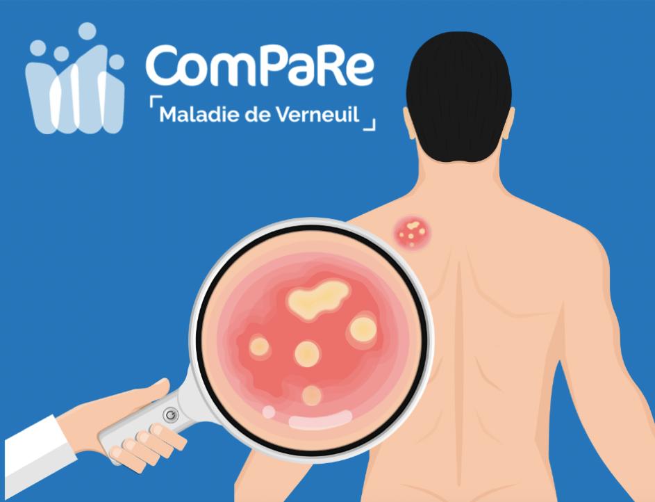 Premiers résultats de la cohorte ComPaRe Maladie de Verneuil